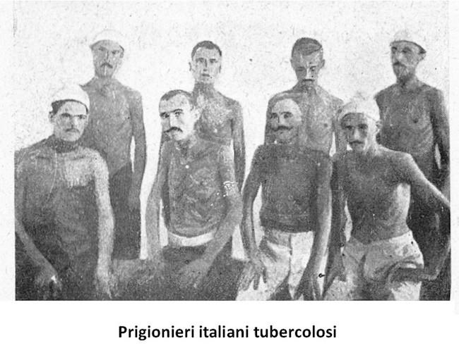 Tubercolosi
